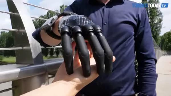 Un incidente con la macchina tritacarne 3 anni fa, oggi Marco può utilizzare la nuova mano bionica